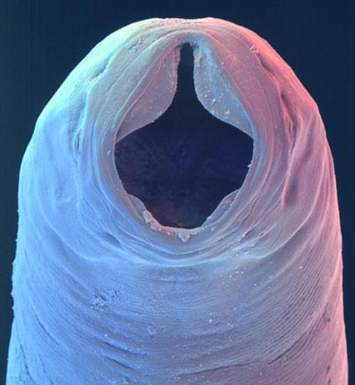 8 parasitas que vivem dentro de humanos e o que eles provocam